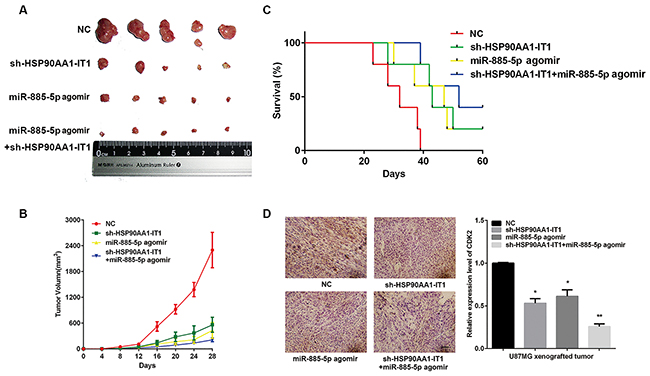 Effects of HSP90AA1-IT1 and miR-885-5p on tumorigenic capacities of the glioma cells in vivo.