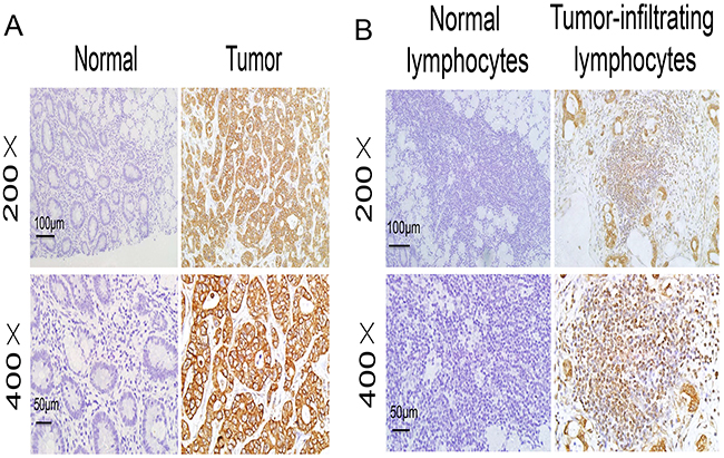 IKKε expression in the tumor microenvironment.