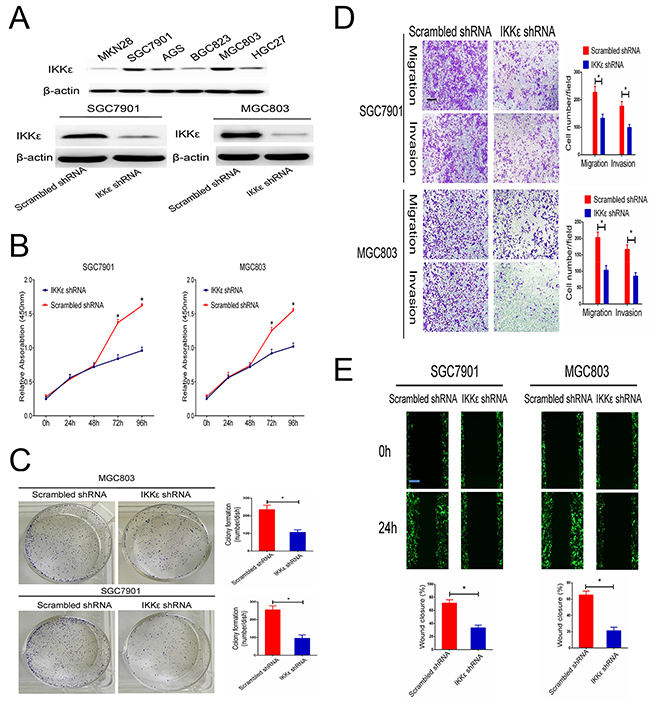 IKKε enhances the invasion and migration of GC cell lines.