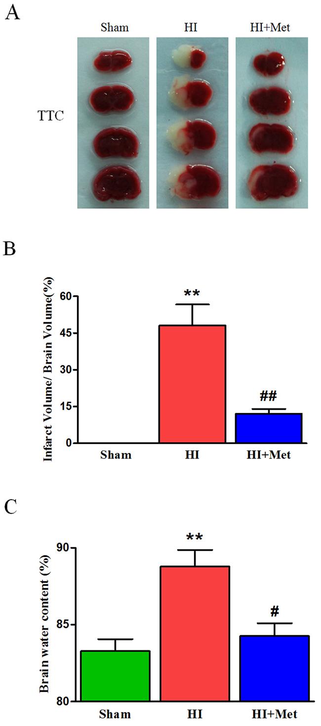 Metformin treatment ameliorated the infarct volume and brain edema in HI brain injury.