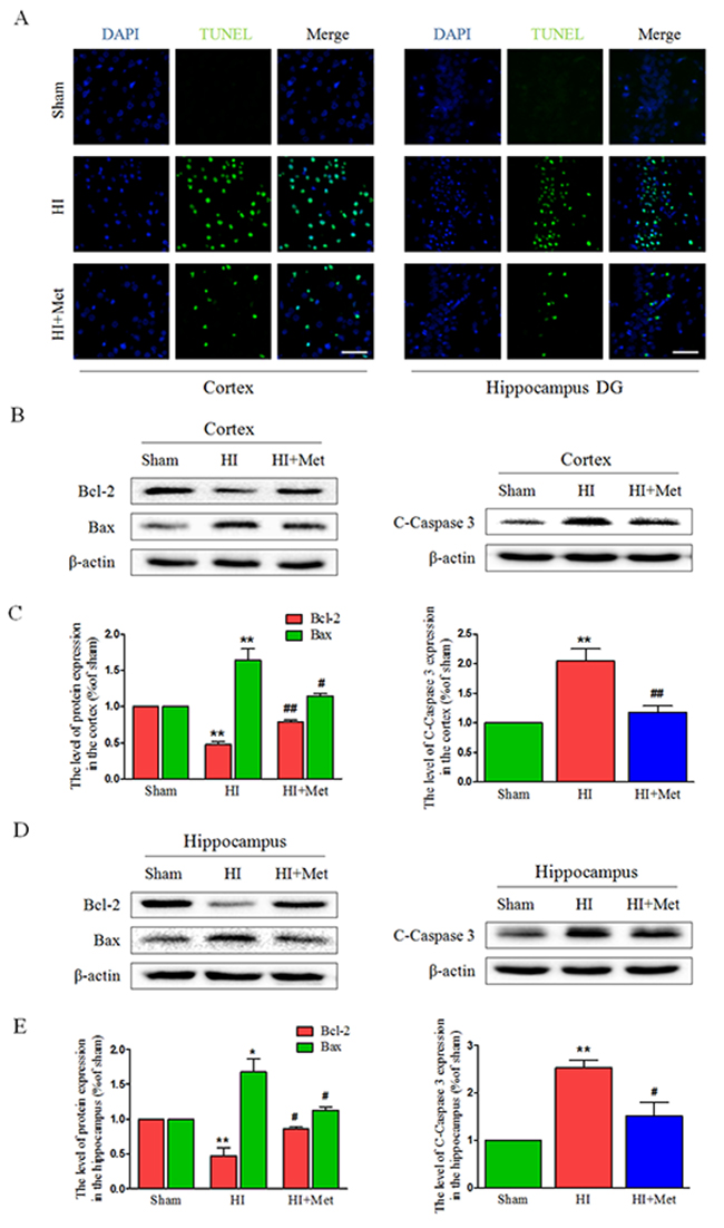 Metformin treatment attenuated apoptosis induced by HI injury.