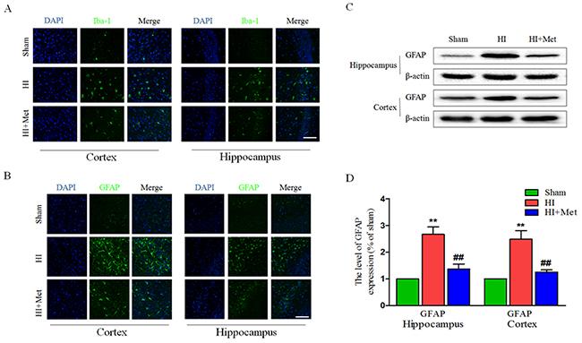 Metformin treatment reduced astrogliosis and microgliosis after HI injury.