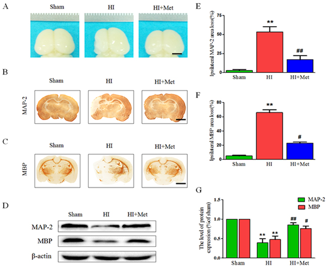 Metformin treatment attenuated brain atrophy, enhanced axonal repairation and promoted remyelination after HI injury.