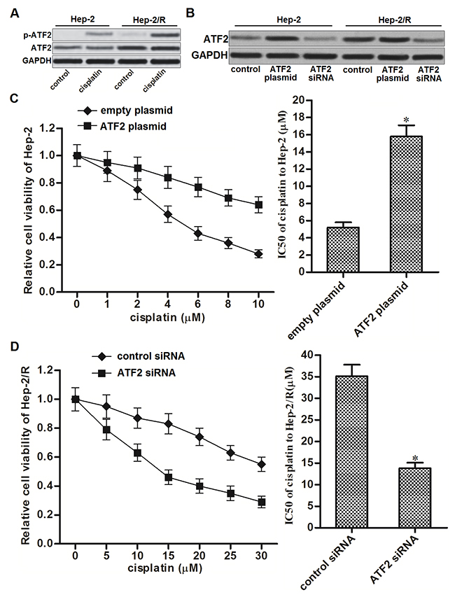 Overexpression of ATF2 is responsible for cisplatin resistance in Hep-2/R.