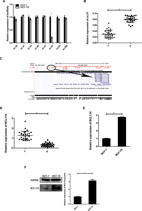 Expression of uc.57 and BCL11A correlates with TAM resistance in breast cancer.