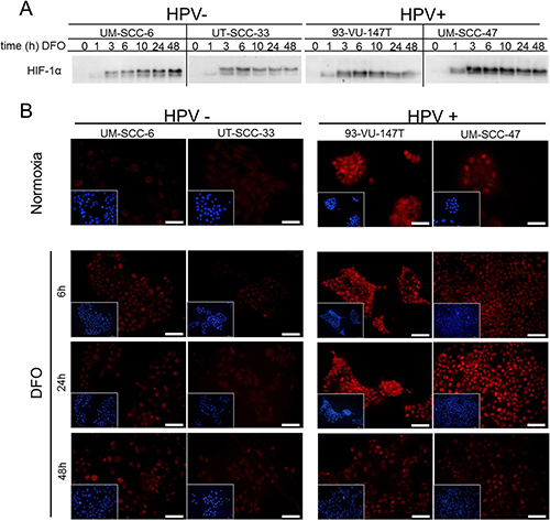 Enhanced upregulation of HIF-1α by chemical induction in HPV-positive HNSCC cell lines.