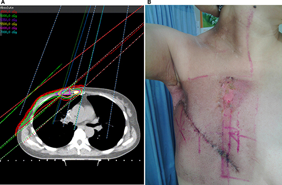 A typical post-mastectomy case with right breast cancer treated with conventional technique.