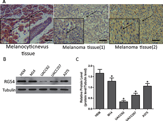 RGS4 expression is remarkably decreased in melanoma tissues and cells.