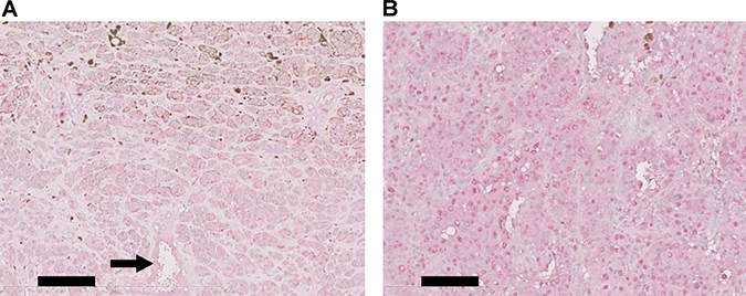 Immunohistochemical analysis of TRPM5 expression in clinical specimens of human melanoma.