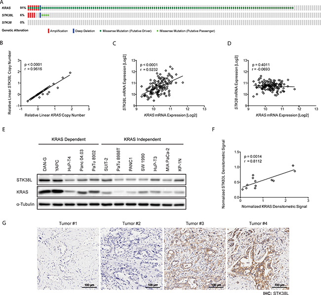 STK38L and KRAS expression levels correlate in primary PDACs and PDAC-derived cell lines.
