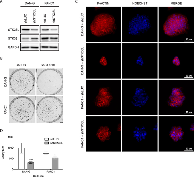 STK38L promotes clonogenic growth of DAN-G cells.