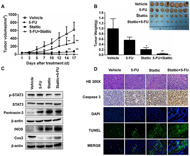 Xenografs from primary tumor EG30, which contained high level of pSTAT3, was sensitive to STAT3 inhibition.