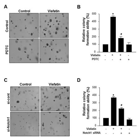 Effect of NF-κB inhibition or Notch1 silencing on the visfatin-induced breast cancer cell proliferation.