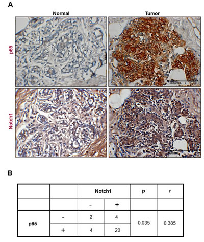Representative images showing coexpression of p65 and Notch1 in human breast cancer.