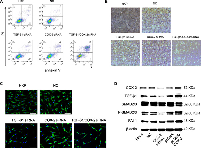 Phenotypical Effects after Target Genes Silenced by TGF-β1 and COX-2 Specific siRNA Duplexes.