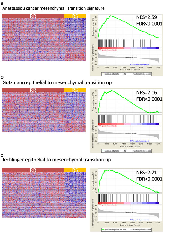 Gene Set Enrichment Analysis(GSEA) shows enrichment of EMT(epithelial mesenchymal transition) related genes among radioresistant(RR) patient classified by the gene signature.
