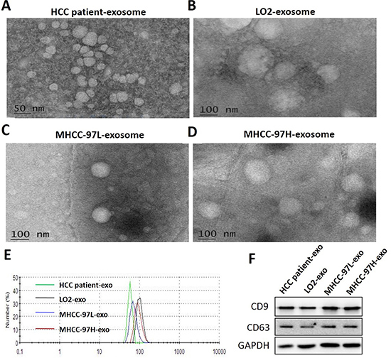 Characterization of isolated exosomes.