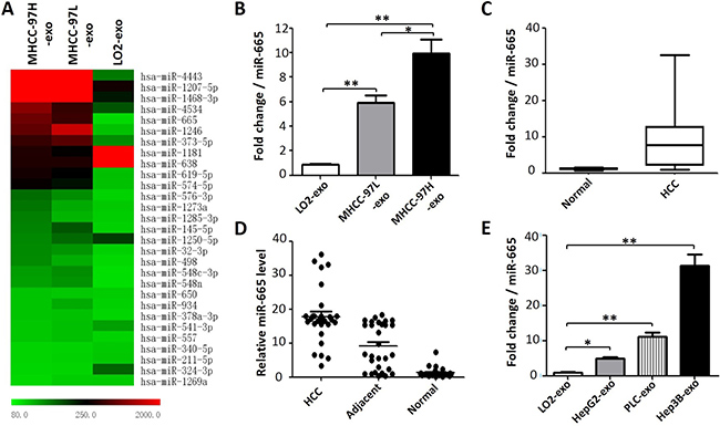 Exosomal miR-665 expression is significantly higher in HCC.