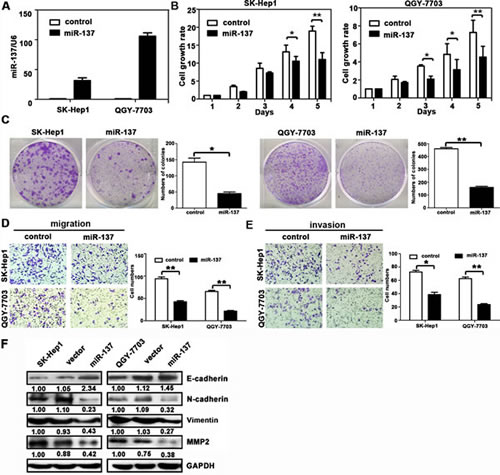miR-137 inhibits HCC cell proliferation, migration and invasion