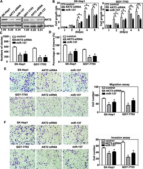 AKT2 silencing recapitulates the effects of miR-137 on HCC cells.