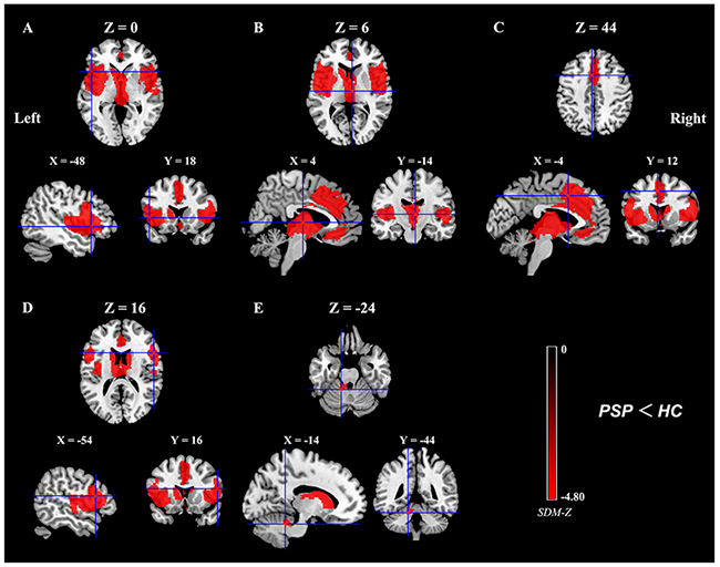 Meta-analytic results of gray matter reductions in patients with PSP compared to healthy controls.