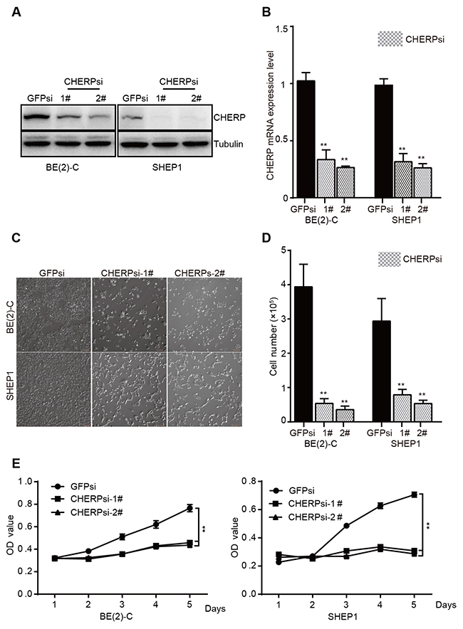 CHERP depletion decreases cell viability by inhibiting proliferation in vitro.