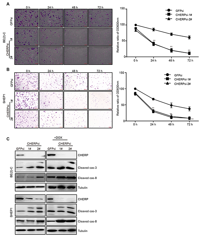 CHERP depletion results in alterations in the sensitivity of neuroblastoma cells to DOX.