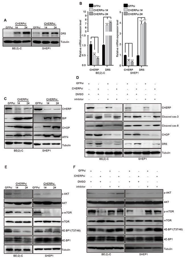 CHERP depletion induces neuroblastoma cell apoptosis via the ER stress pathway.