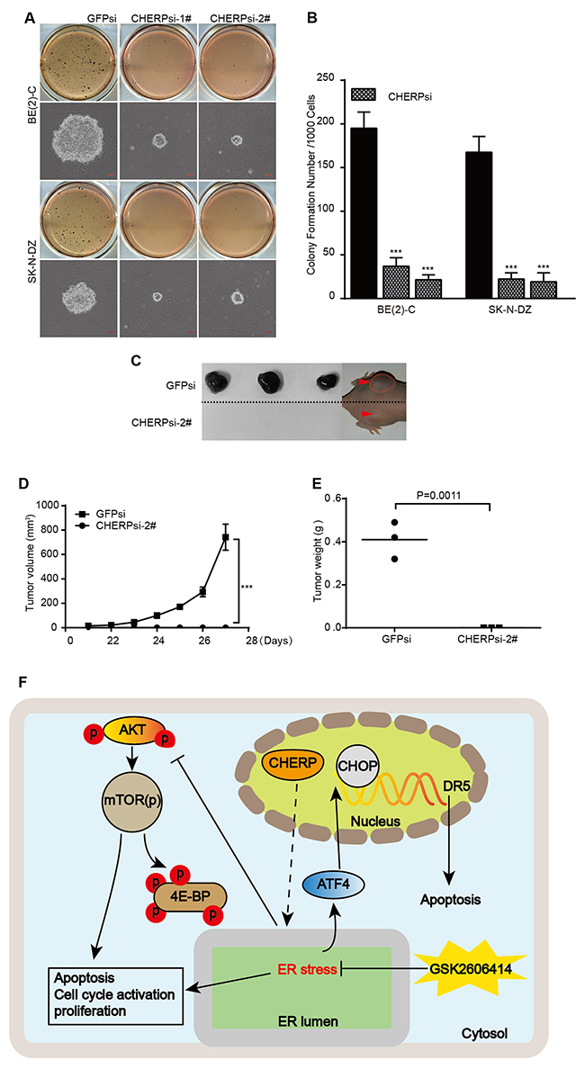 CHERP depletion impairs colony growth and tumorigenicity of neuroblastoma cell lines in vitro and in vivo.