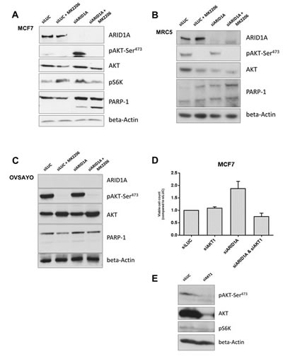 Loss of ARID1A expression increases vulnerability of cancer and primary cells to AKT-inhibition resulting in increased apoptosis.