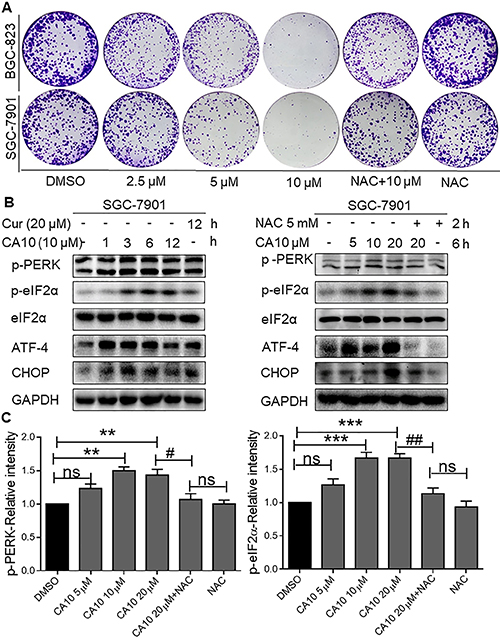 CA10 induces ROS-mediated growth inhibition and ER stress response.