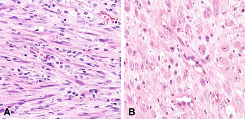 Nuclear features of inflammatory myofibroblastic tumors.