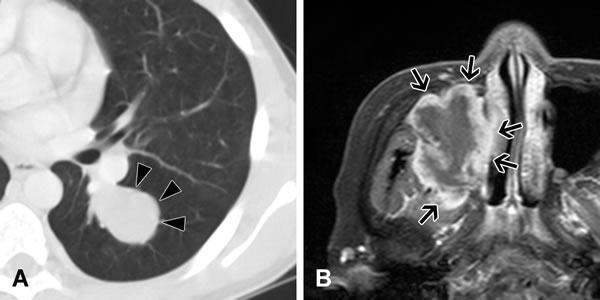 Imaging of inflammatory myofibroblastic tumors.
