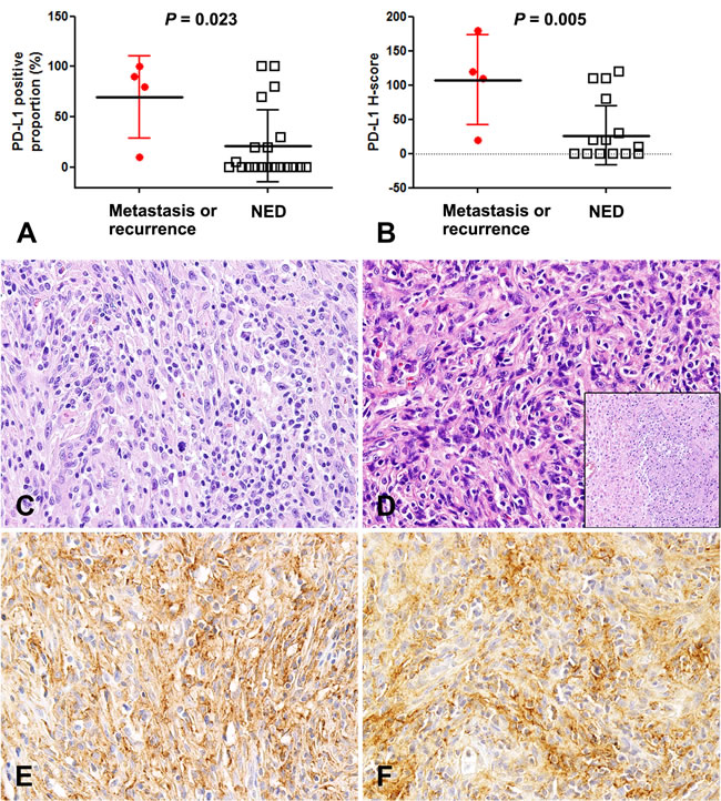 Higher PD-L1 expression in inflammatory myofibroblastic tumors with metastasis and recurrence.