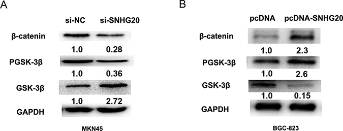 SNHG20 activated GSK-3β/β-catenin signaling pathway in the GC cell lines.