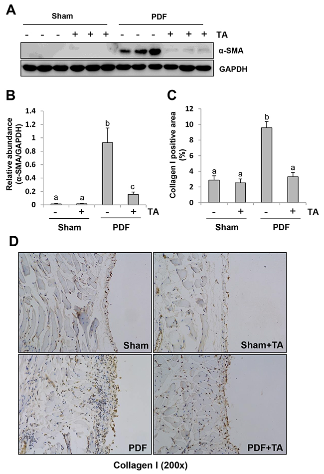Inhibition of HDAC6 reduces fibroblast activation and ECM protein deposition in the peritoneum after exposure to high glucose dialysate.