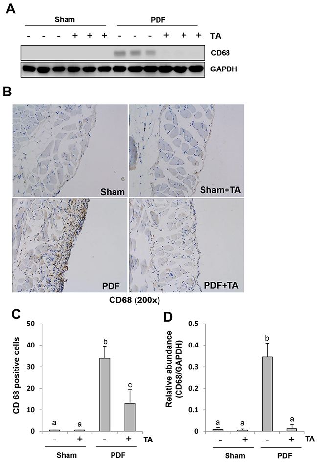 Inhibition of HDAC6 attenuates macrophage infiltration in the peritoneum induced by high glucose PDF.