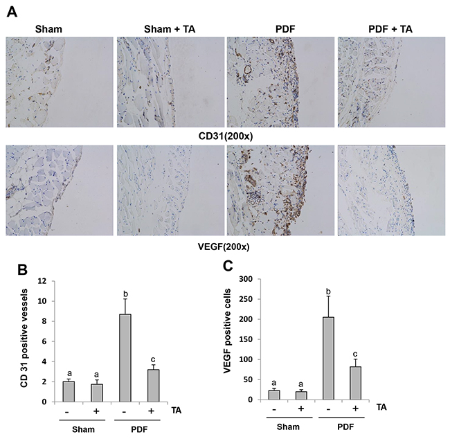 Inhibition of HDAC6 reduces angiogenesis and VEGF expression in the peritoneum after chronic exposure to high glucose dialysate.