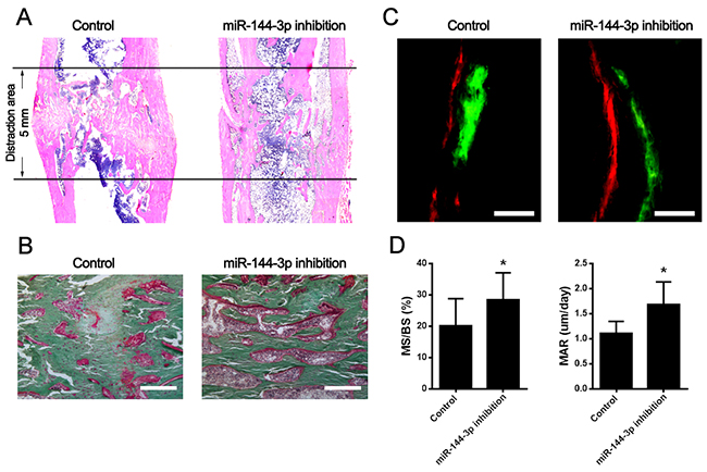Bone tissue regeneration was accelerated by miR-144-3p inhibitor modified MSCs in DO animal model.