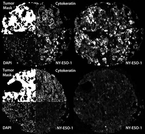 Automated, quantitative analysis (AQUA) of NY-ESO-1.