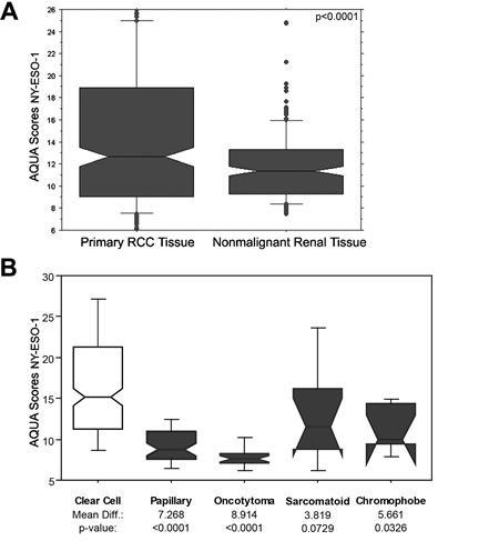 NY-ESO-1 expression in primary and nonmalignant renal specimens and in different histologic subtypes.