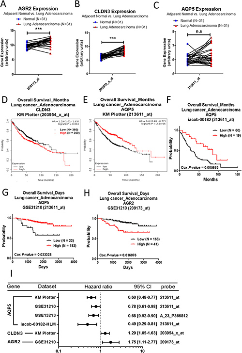 Analysis of AGR2, CLDN3, and AQP5 in clinical lung adenocarcinoma patients using bioinformatics databases.