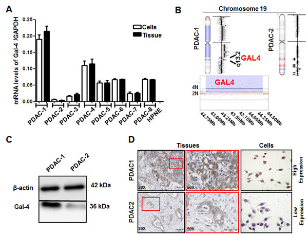 Gal-4 is differentially expressed in primary PDAC cell cultures, as well as in their originator tissues.