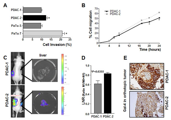 Gal-4 expression correlates with invasive and migratory capabilities of PDAC cells.