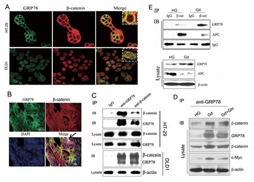 GRP78 co-localizes with β-catenin in colorectal cancer cells.