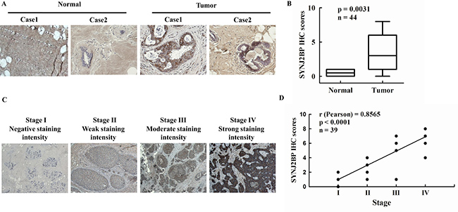 The expression of SYNJ2BP in breast tumor tissue samples.