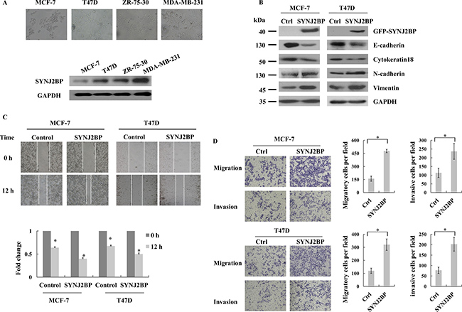 The effects of SYNJ2BP expression on breast cancer cellular EMT phenotype.
