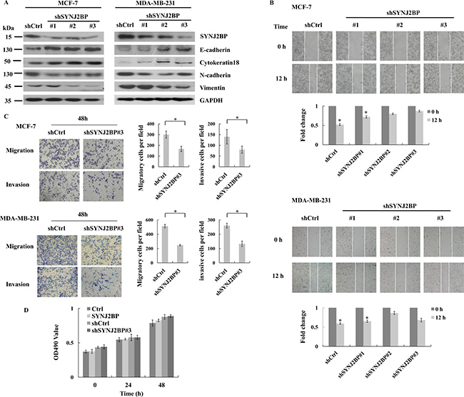 The effects of SYNJ2BP ablation on breast cancer cellular EMT phenotype.