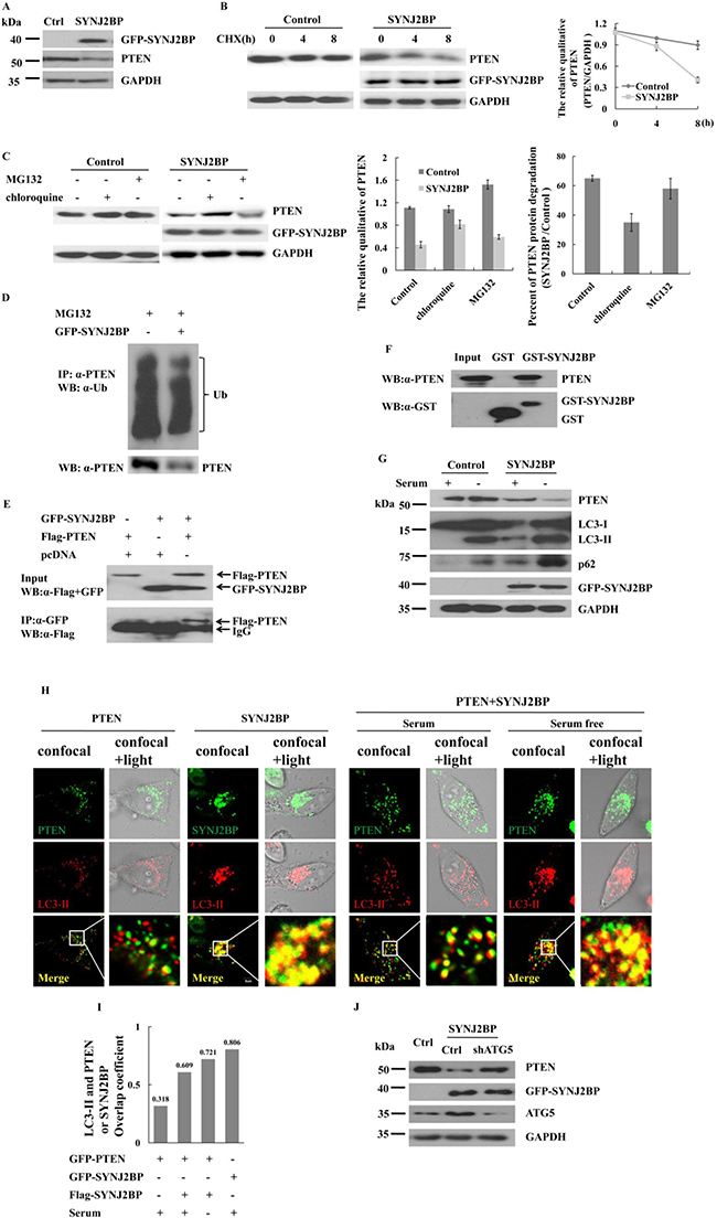 Effects of SYNJ2BP on the expression of PTEN.
