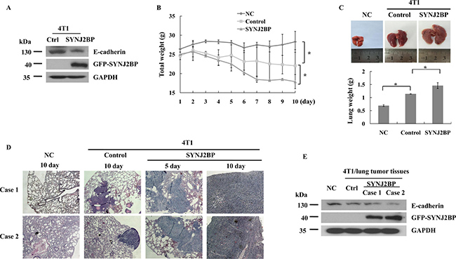 SYNJ2BP modulates the metastasis and growth of 4T1 cells in BALB/c mice.